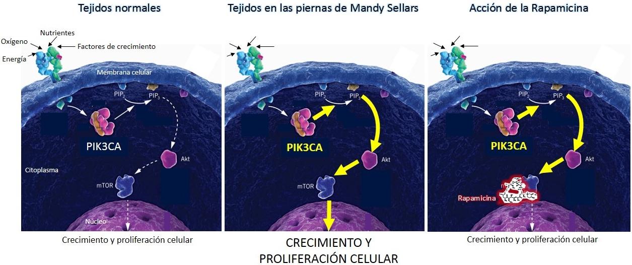 Modelo simplificado que ilustra la causa de la enfermedad de Mandy Sellars y el tratamiento con Rapamicina.