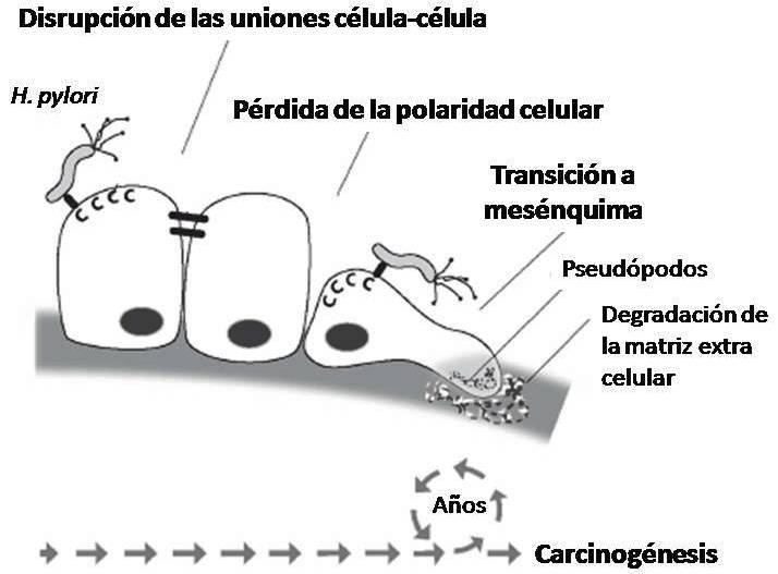 Modelo de carcinogénesis asociada a H. pylori.