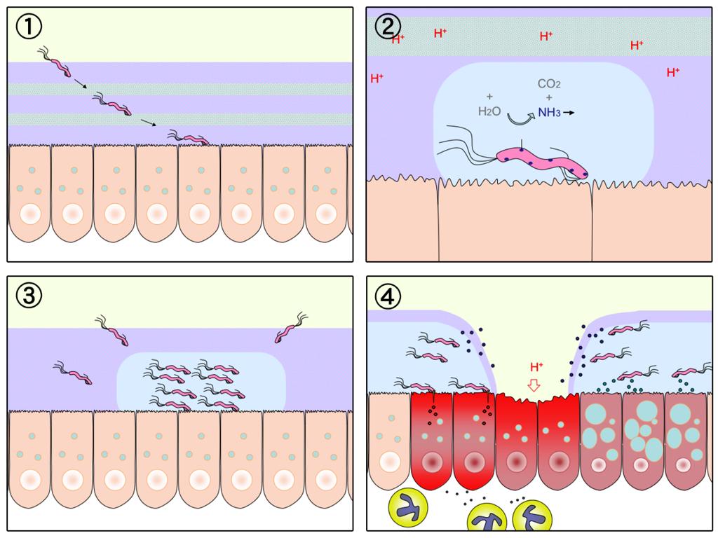1, H. pylori penetra la mucosa estomacal. 2, neutraliza los ácidos gástricos. 3, prolifera en el foco de infección. 4, destruye la mucosa y se desarrolla la úlcera.