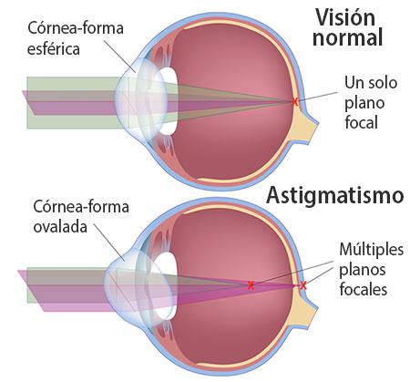 astigmatismo ojo felix moronta