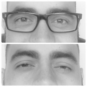 astigmatismo selfie felix moronta