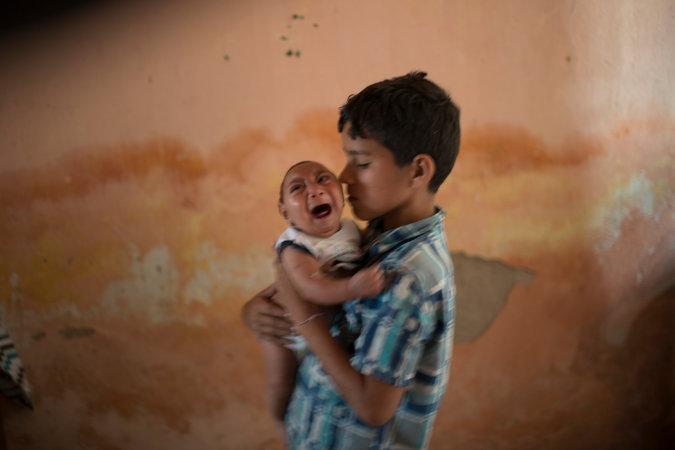 niño microcefalia zika felix moronta